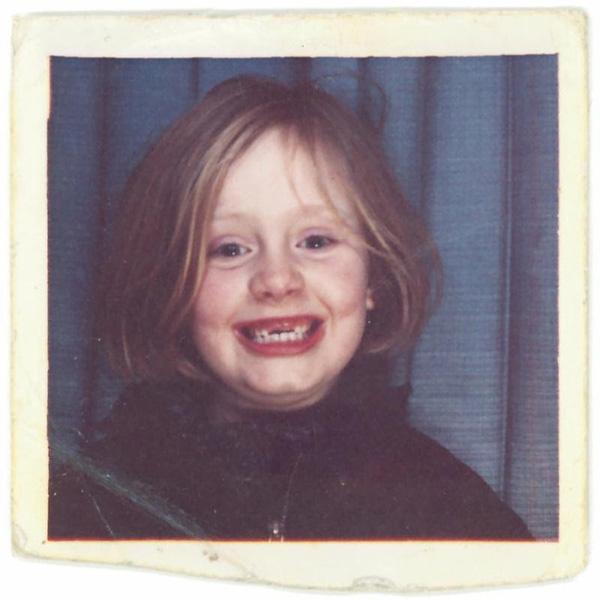 Adele sún răng được dùng làm bìa cho single mới